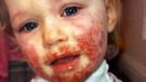 Dudağından öptükleri küçük kız, çaresiz bir hastalığa yakalandı