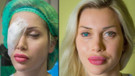 Pixiee Fox estetik ameliyatla göz rengini değiştirdi