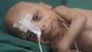 Yaşlı doğan bebeğe Benjamin Button benzetmesi