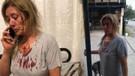 Yavru köpeklerini gezdiren kadına taşlı saldırı