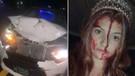 Cadılar Bayramı kostümüyle kaza yapınca öldü sandılar