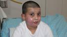 Sprey kutusu patladı, küçük çocuğun yüzü feci şekilde yandı