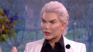 70 kez bıçak altına yatan estetik bağımlısı Ken Bebek son haliyle korkuttu!