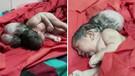 3 başlı doğan bebek görenleri şoke etti!