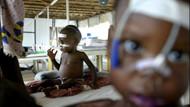 Her 5 saniyede 1 çocuk açlıktan ölüyor!