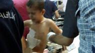 Silvan'da patlama: 1 çocuk öldü, 3 çocuk yaralı