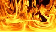 Makam odasında üzerine döktüğü  benzini ateşe verdi