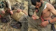 Çatışmada yaralanan teröriste Askerden şefkat eli