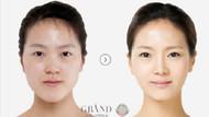 Güney Kore'de estetik çılgınlığı