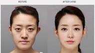 Güney Kore'nin estetik çılgınlığı