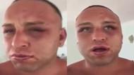 Survivor Taner Tolga Tarlacı'yı çok feci dövdüler!