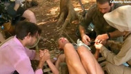 Survivor adasında Lydia Bright'ın parmağına olta saplanınca...
