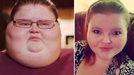 Zayıflamazsa ölecekti, 317 kiloluk Kadın Nasıl Kilo Verdi?