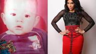 100 bin dolarlık estetik ve Kim Kardashian