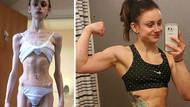 Anoreksiya hastalığına yakalanan kişilerin öncesi ve sonrası inanılmaz!