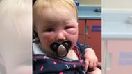 Bebeğinin yüzü yanan anneden güneş kremi uyarısı