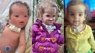 Burunsuz bebek ameliyatlarla büyüdü