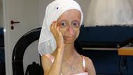 Erken yaşlanma hastası Gamze acılarına dayanamadı