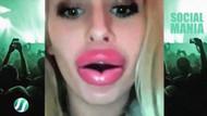 Vakumla dudak büyütme çılgınlığı yayılıyor