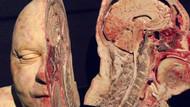 Vücudumuzla ilgili belki ilk kez göreceğiniz 10 ekstrem görüntü