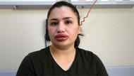 Silikon dudak faciasında sahte estetikçiye tahliye