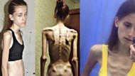 Anoreksiya hastası genç kız 31 kiloya düştü
