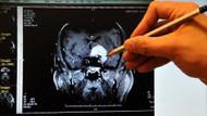 Alzheimer's Disease: Kadınların beyinleri erkeklerinkinden daha aktif