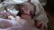 Şeytan görünümlü bebek görenleri ürküttü! Hastalığı ne?