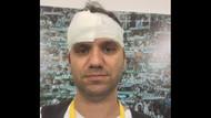 Bursaspor taraftarları 3 basın mensubunu yaraladı