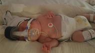 Doktorların yaşamaz dediği bebek yeni yılı evinde kutlayacak
