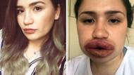 Silikonlu dudak mağduru hemşire Merve Keleş'in son hali