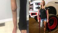 Mini etek giyebilmek için sağ bacağını kestirdi