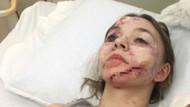 Genç oyuncu hayatının şokunu yaşadı! Sette korkunç kaza