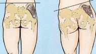 Bu hastalığı ilk kez duyacaksınız: Ölü popo sendromu