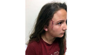 Pitbullun saldırdığı 12 yaşındaki İdil'in yüzüne 52 dikiş atıldı