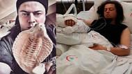 Kobra tarafından ısırılan Aref Ghafouri'nin sağlık durumu nasıl? İşte son detaylar
