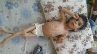 Suriye'de açlıktan yediği kedi ve köpek etinden enfeksiyon kaptı