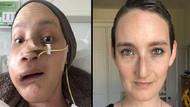 Yüz rekonstrüksiyon ameliyatı oldu hayatı değişti: Hayatta olduğuma inanmakta zorlanıyorum