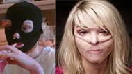 Eski sevgilisi tecavüz edip asit fırlattı: 10yearschallenge fotoğrafı olay