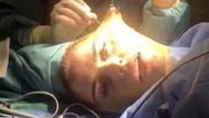 Estetik bağımlısı model yüz gerdirme operasyonu sırasında röportaj verdi