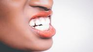 Çocukluk travması kişilerin sebepsiz yere diş sıkmasına neden olabiliyor