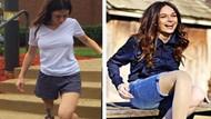 Tessa Snyder'ın 11 yaşında kanser yüzünden bacağı kesildi! Şimdi markalar peşinde koşuyor