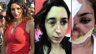 Dehşeti yaşayan Tuğçe hukuk mücadelesi başlattı