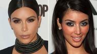 Kim Kardashian estetik mi yaptırdı?