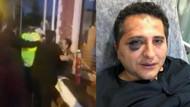 Avukat döven korumalara soruşturma izni verilmedi