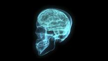 Beynin en fazla değişime uğrayan bölgeleri belirlendi