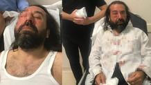İYİ Parti kurucusu Metin Bozkurt'a saldırı!