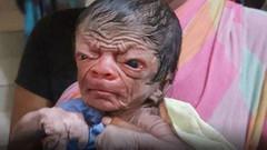 Benjamin Button gerçek oldu! İşte o bebek