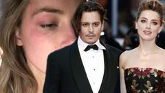 Johnny Depp hakkında şok iddia: Bana şiddet uyguladı!