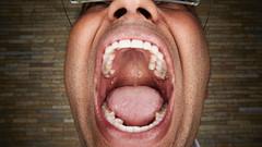 Guiness Dünya rekorlarına göre en çok dişli insan olan Hintli Vijay Kumar'ın kaç tane dişi vardır?